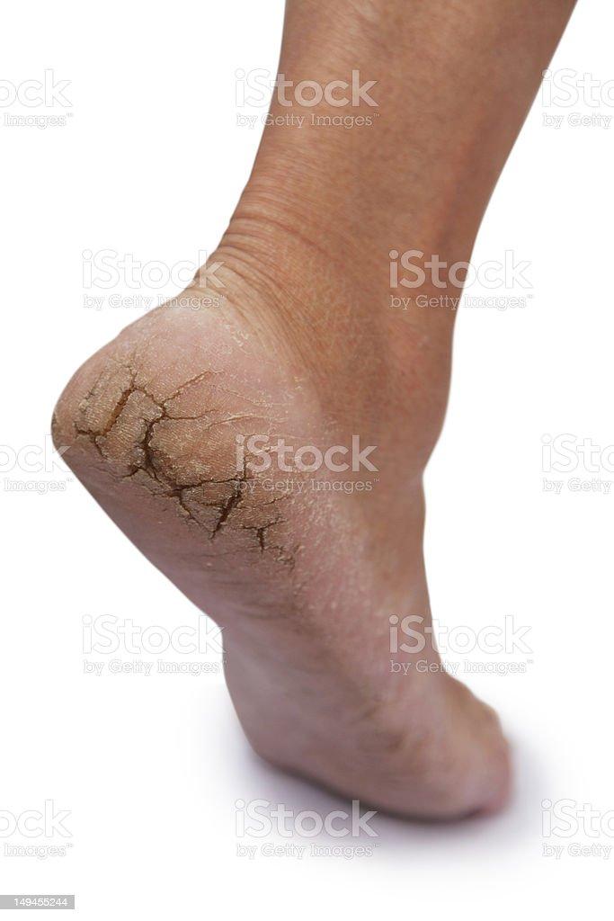 chapped heel stock photo