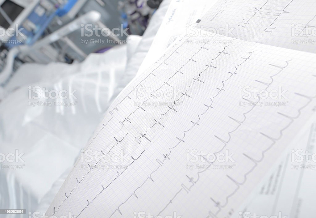 ECG chart in the ward close-up stock photo