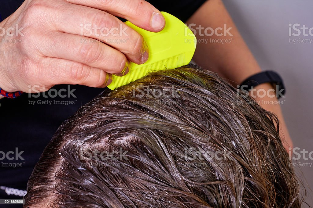 checking hair for lice stock photo
