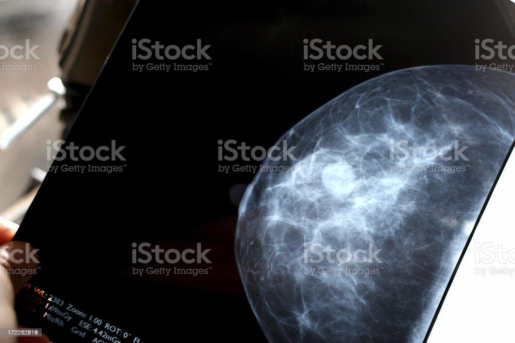 Checking mammogram royalty-free stock photo