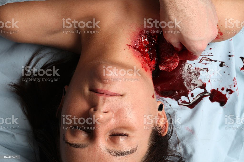 Checking the Dressing on a Mauling Victim stock photo