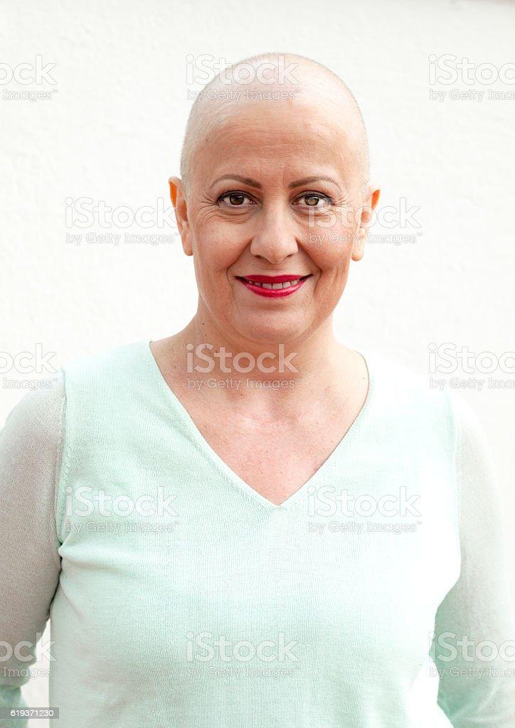Cheme female patient portrait stock photo