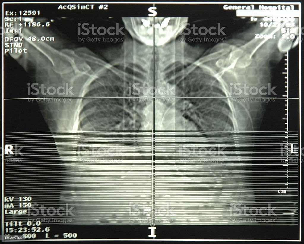 Chest lung x-ray stock photo