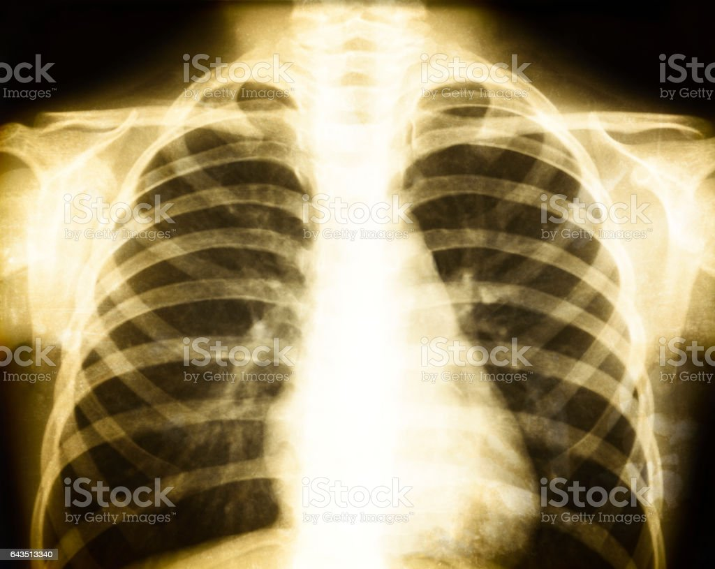 Chest of old X-ray image stock photo