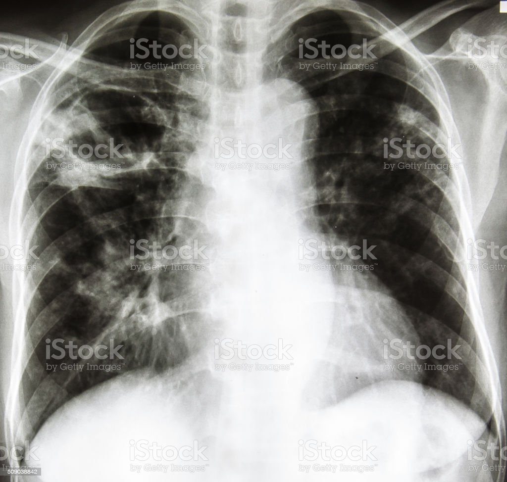 chest radiography stock photo