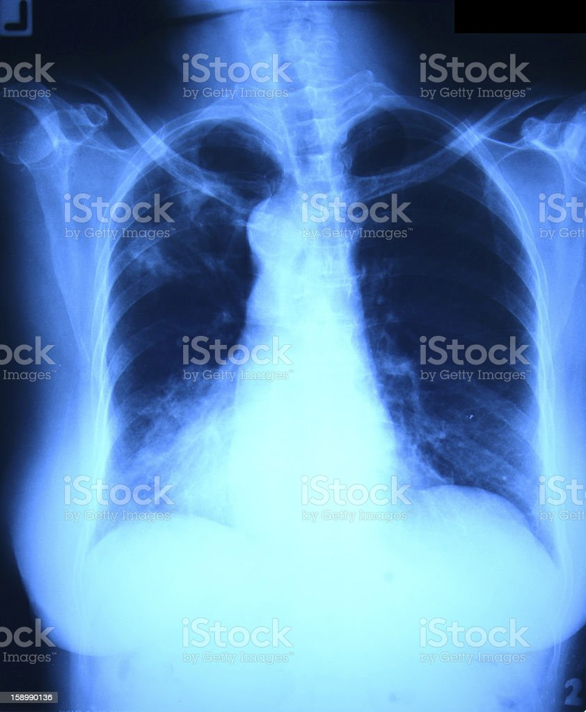 Chest x ray film royalty-free stock photo