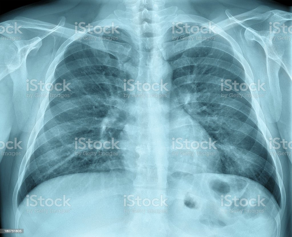 Chest X Ray Male stock photo