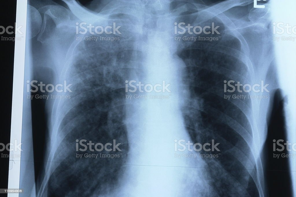 Chest X ray royalty-free stock photo