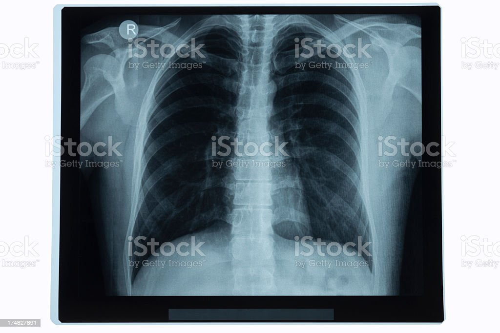 A chest X-ray displayed before a lighted screen stock photo