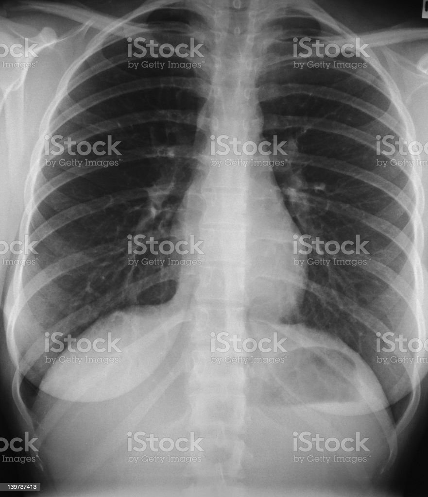 Chest X-ray, female, front stock photo