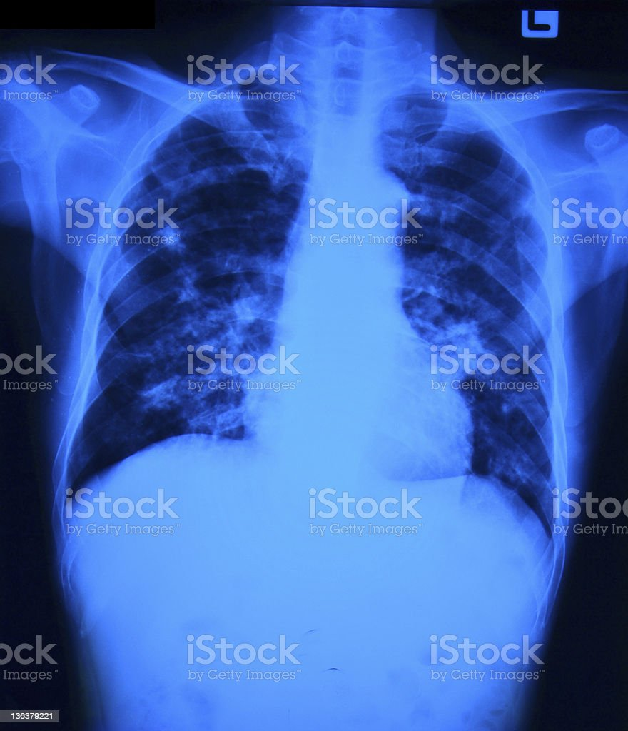 Chest x-ray film royalty-free stock photo