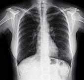 Chest X-ray Image of Women