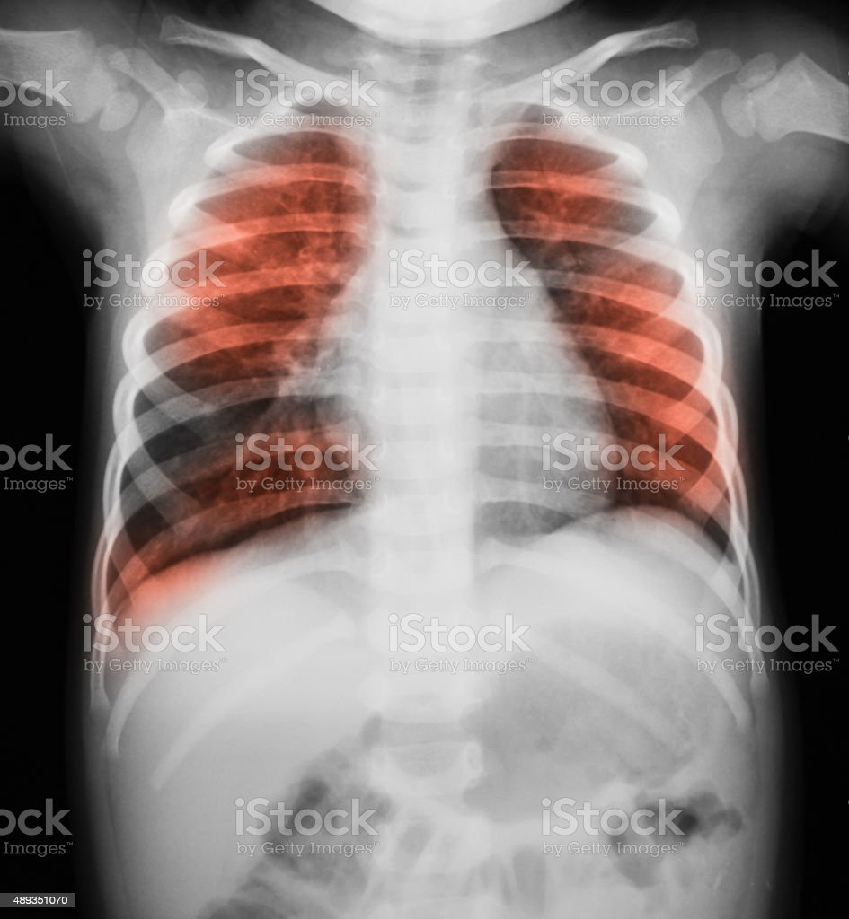 Chest x-ray image, PA upright view. stock photo
