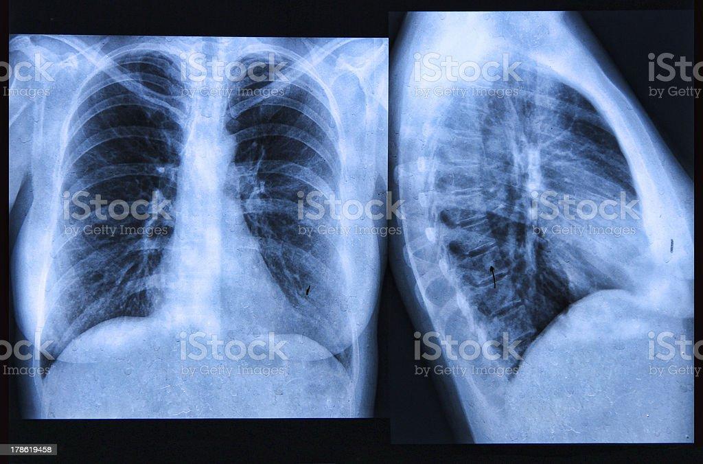 Chest X-ray Image stock photo