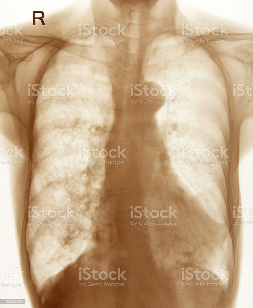 Chest X-ray image royalty-free stock photo