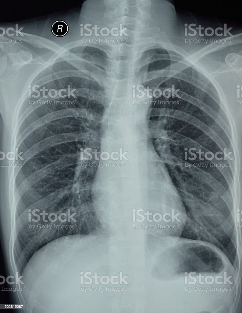 Chest X-ray light slice stock photo