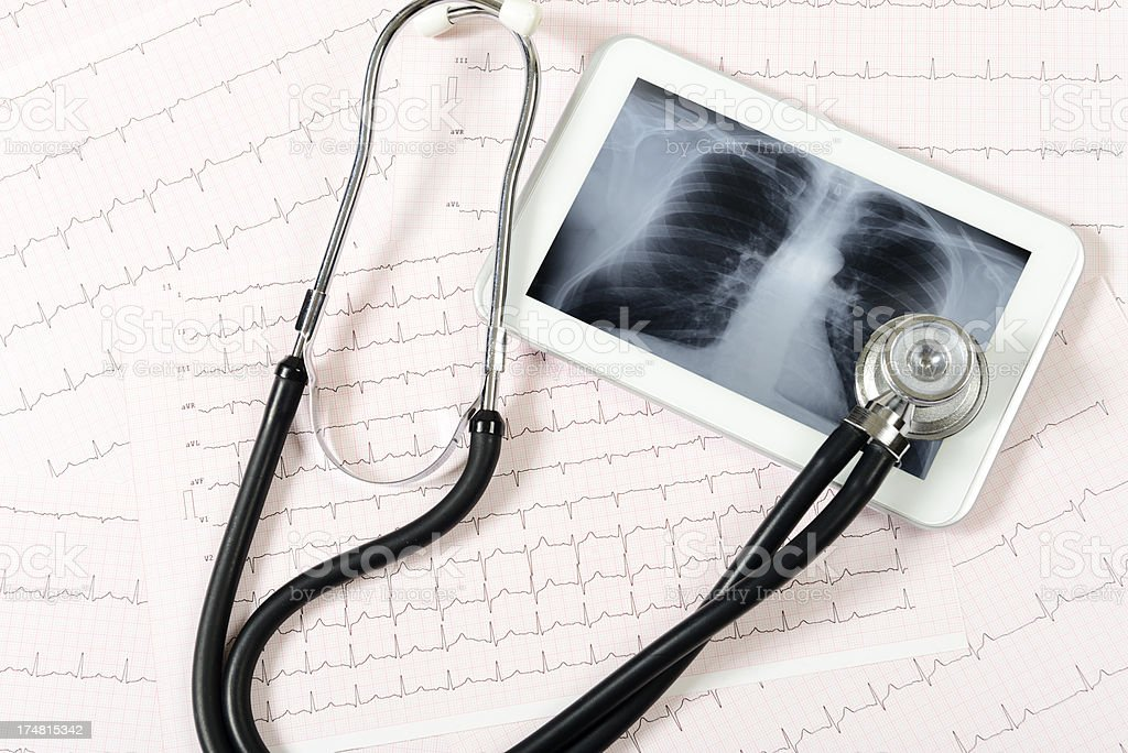 Chest x-ray on Digital Tablet royalty-free stock photo