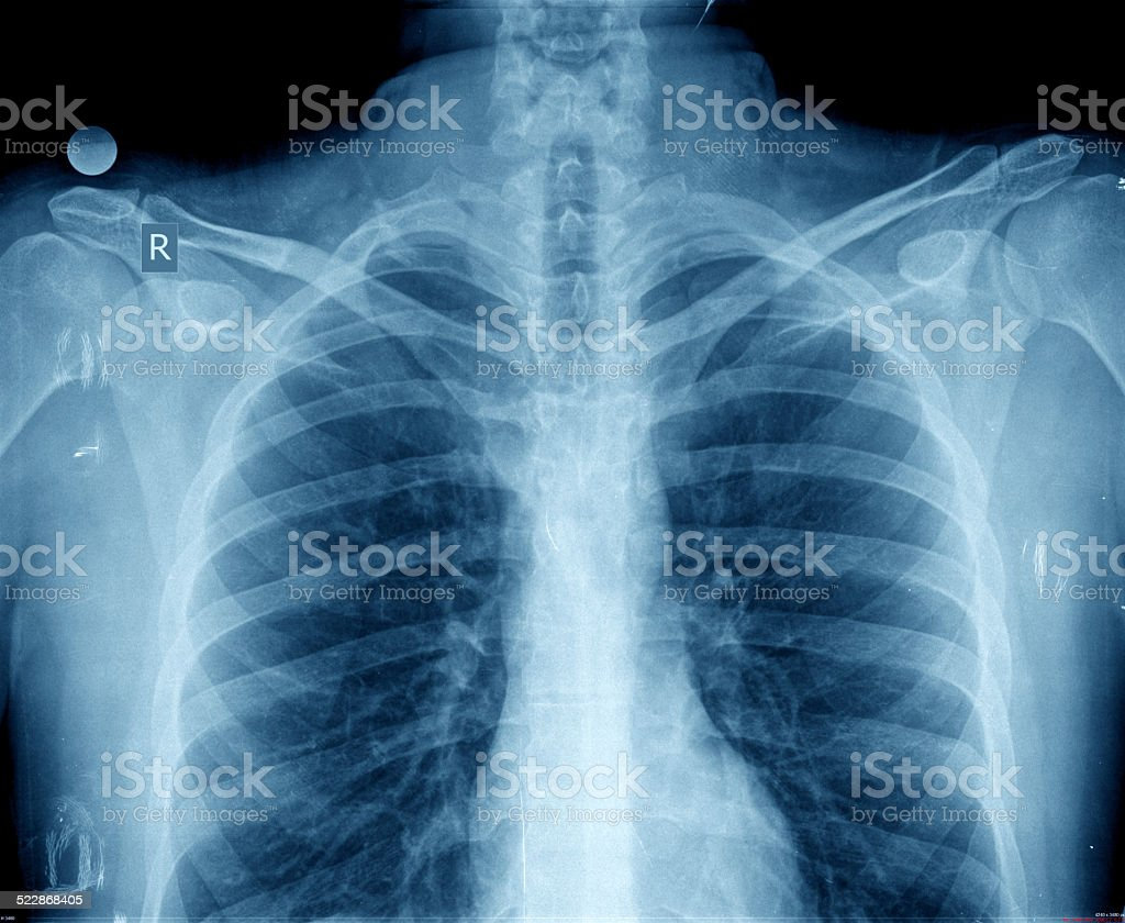 chest xray stock photo