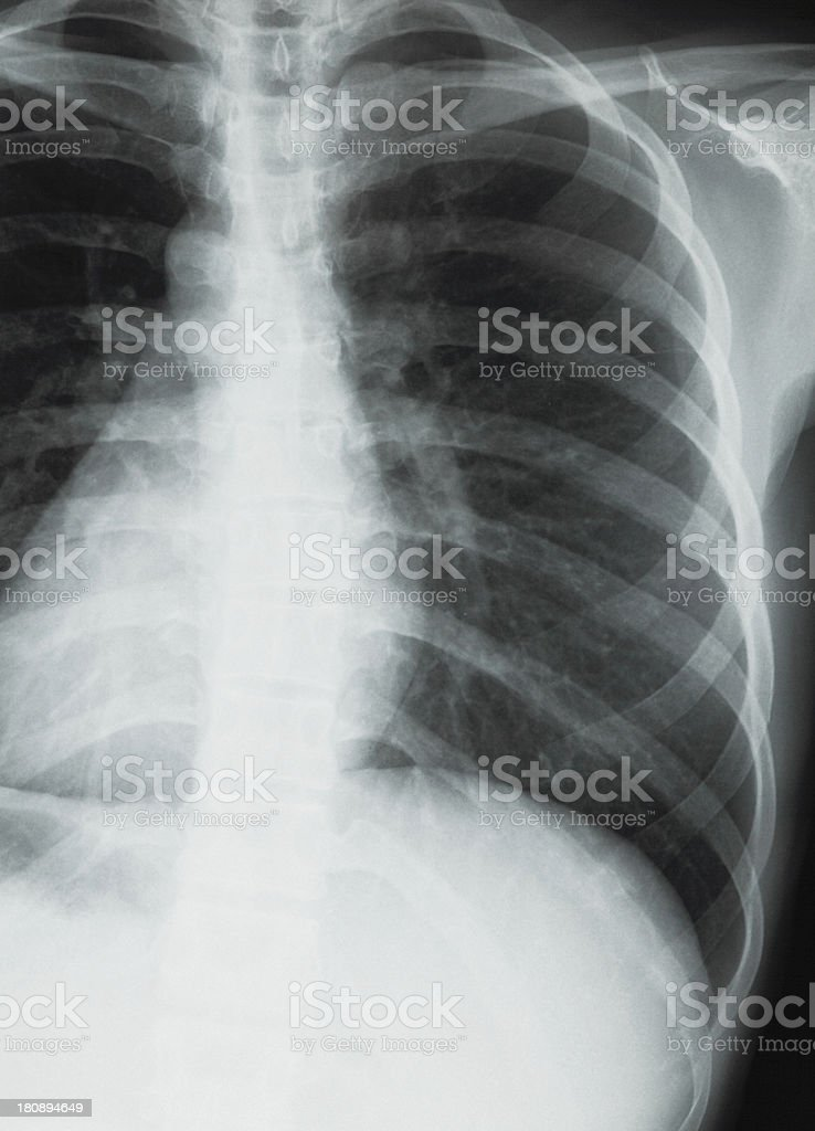 Chest xray scan royalty-free stock photo