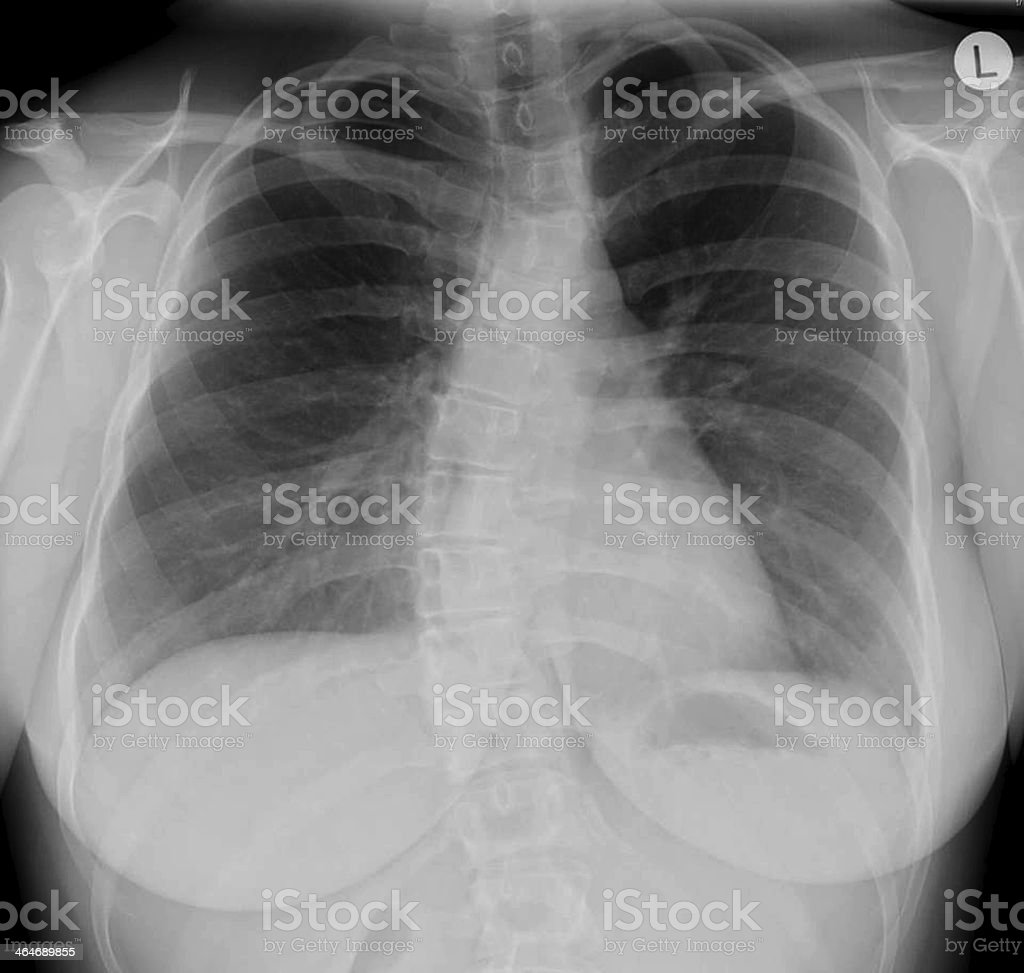 Chest x-ray - scoliosis royalty-free stock photo