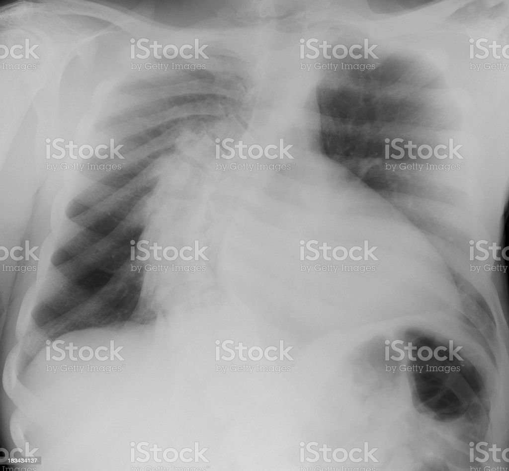 Chest xray showing scoliosis or bent spine in young adult royalty-free stock photo