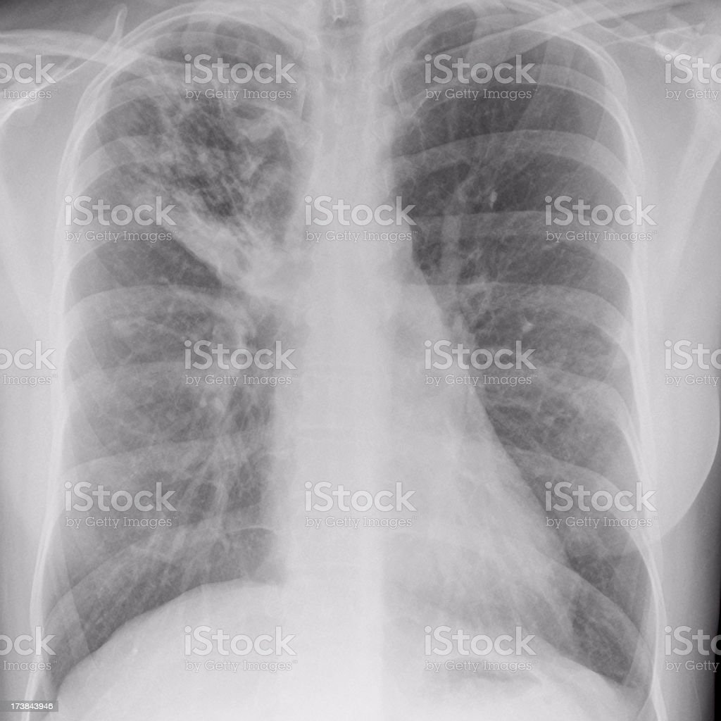 chest x-ray showing tuberculosis in a young immigrant royalty-free stock photo