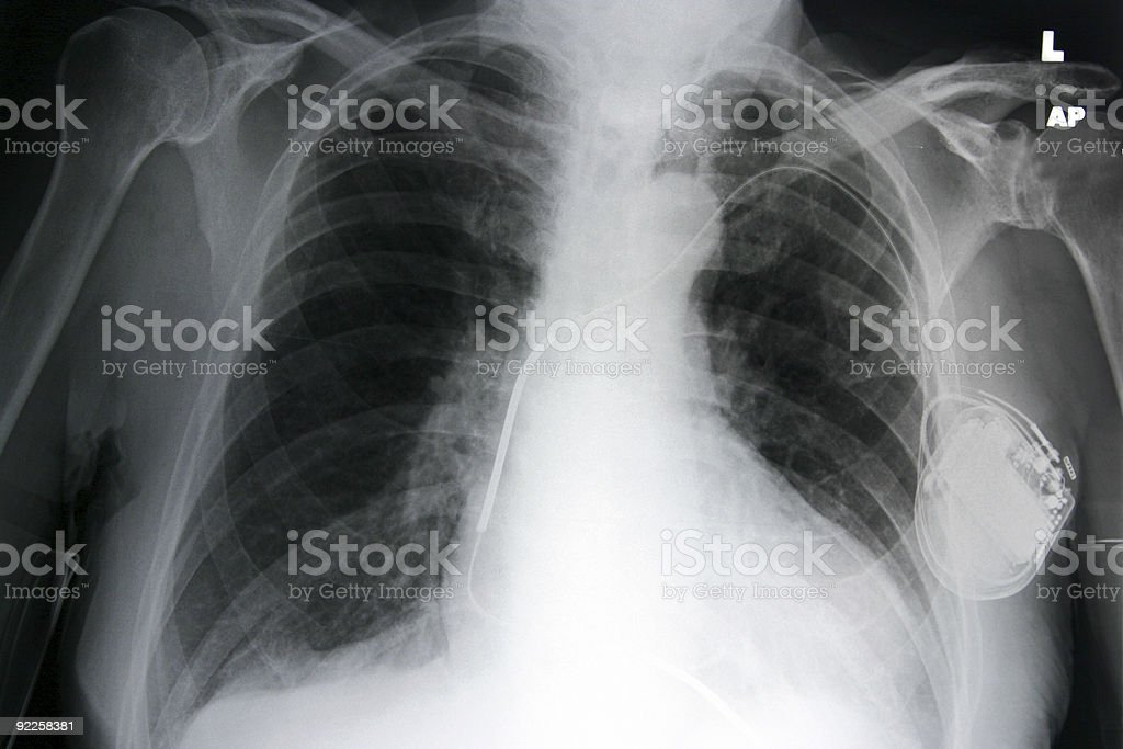 Chest+pacemaker royalty-free stock photo