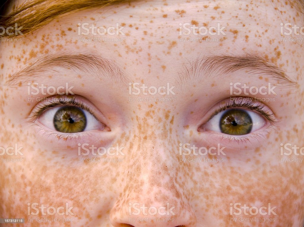 Child & Eyes Wide Open, Irish Redhead Freckle Face Surprised Girl stock photo