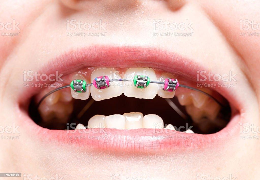 Child Girl's New Dental Braces stock photo