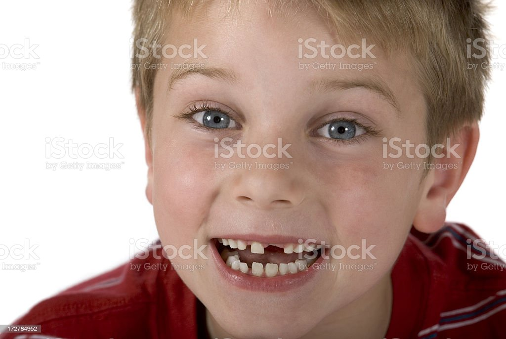 Child (Boy) Missing Teeth, Isolated On White, Clipping Path stock photo