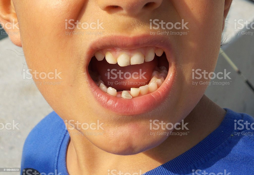 Child Missing Teeth stock photo