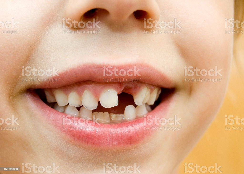 Child smile with missing teeth royalty-free stock photo