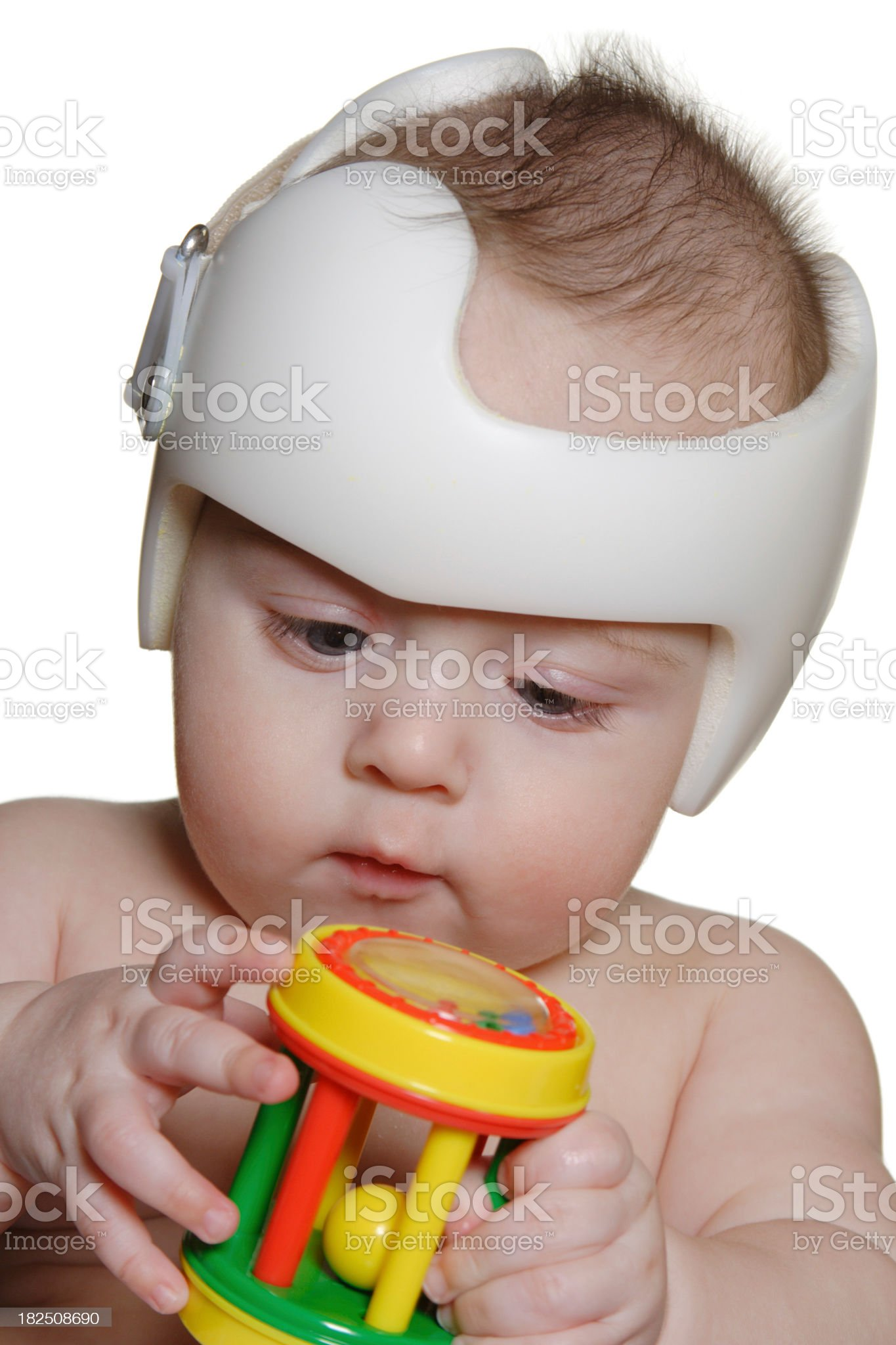 Child wearing a special helmet for plagiocephaly royalty-free stock photo