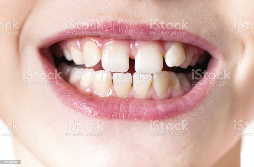 Child with bad teeth stock photo