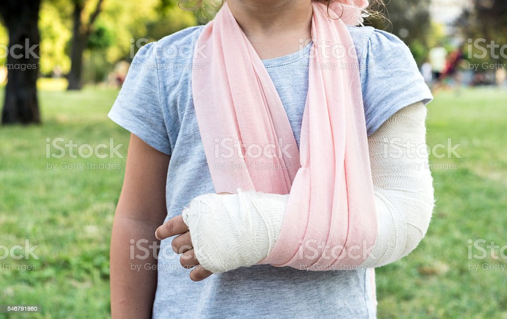 Child with broken hand stock photo