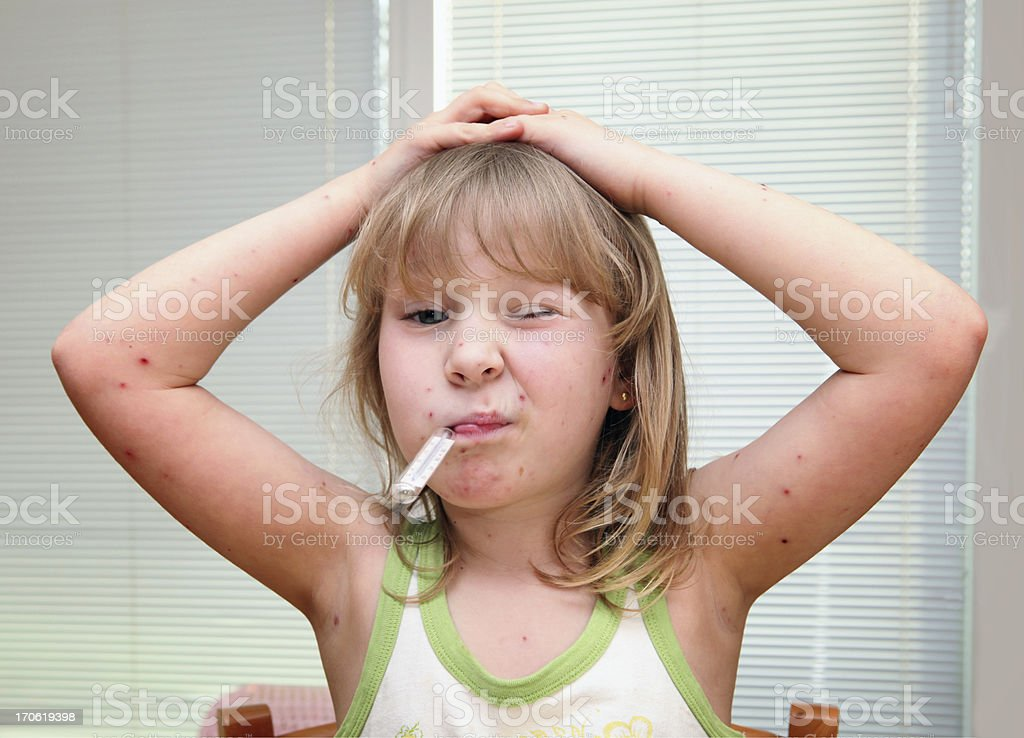 Child with chickenpox having thermometer in mouth stock photo