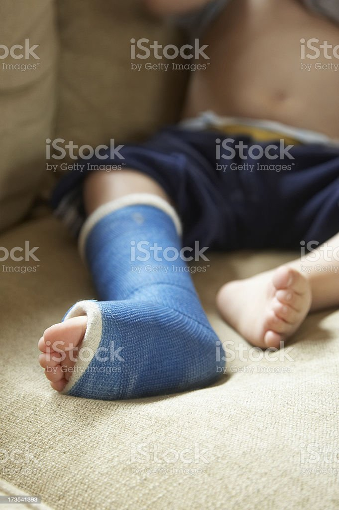 Child's broken leg in cast stock photo