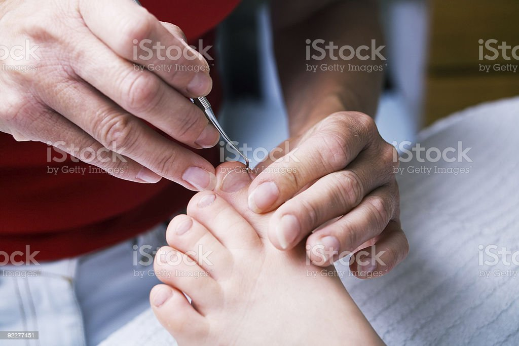 chiropody session royalty-free stock photo