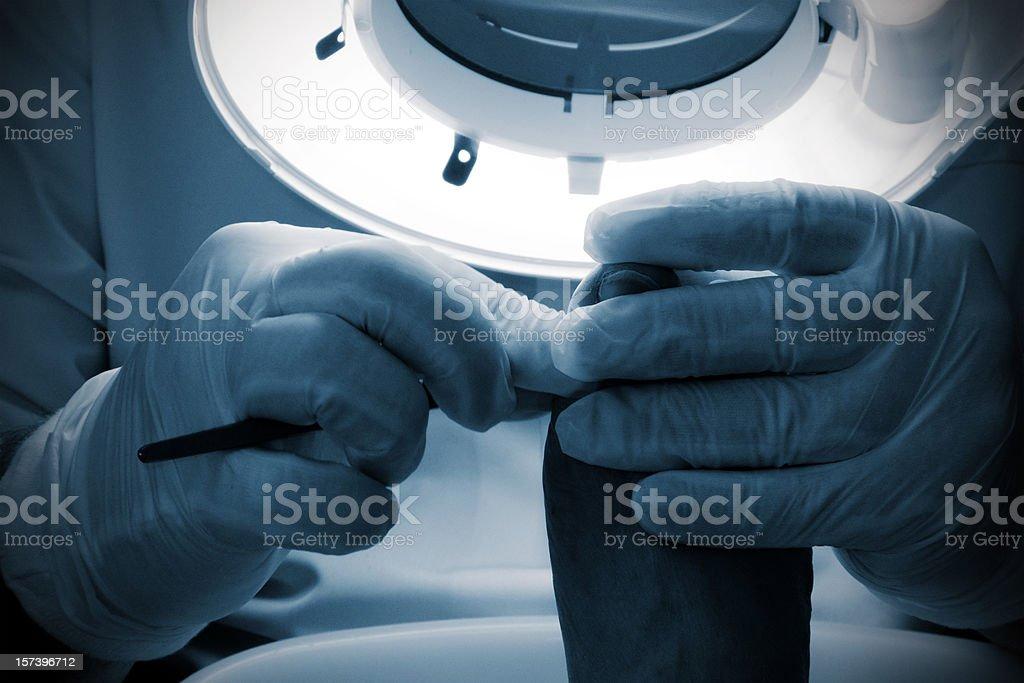 Chiropody treatment stock photo