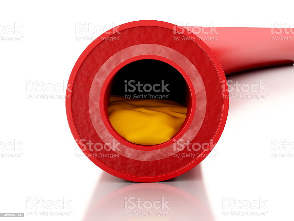 3D cholesterol plaque in artery model stock photo