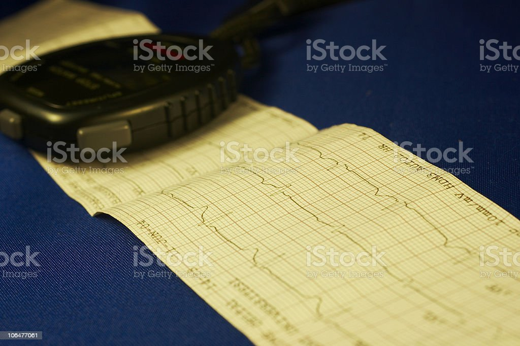 Chronometer and cardiography royalty-free stock photo