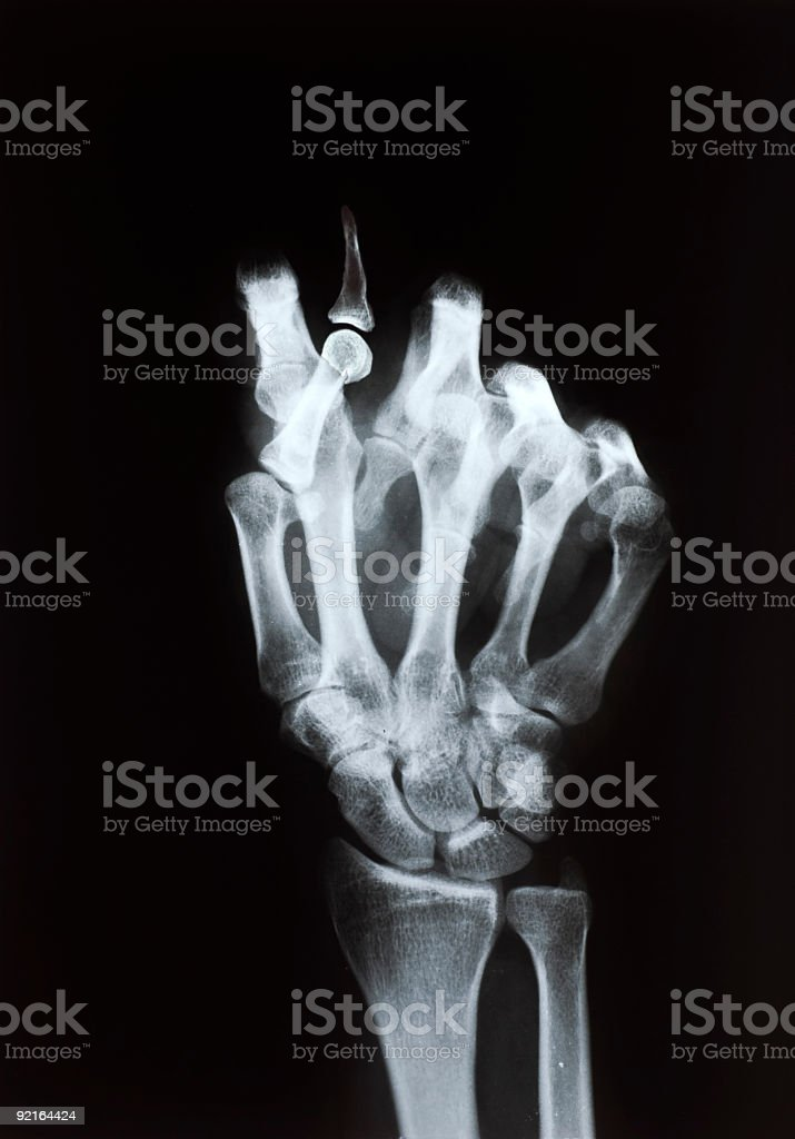 F*ck you stock photo