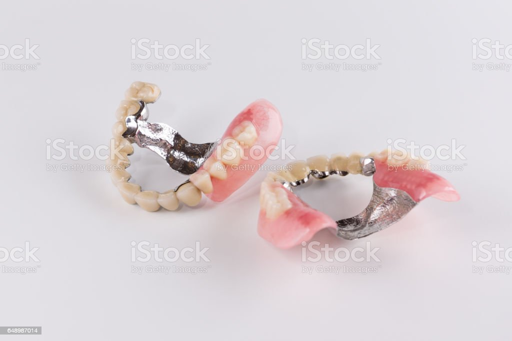 Clasp prosthesis with and attachments stock photo