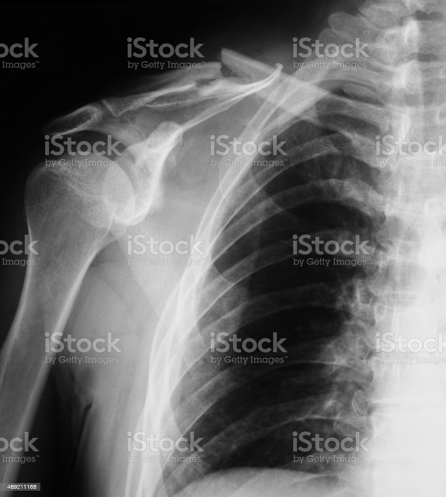 Clavicle fracture x-ray image, AP view. stock photo