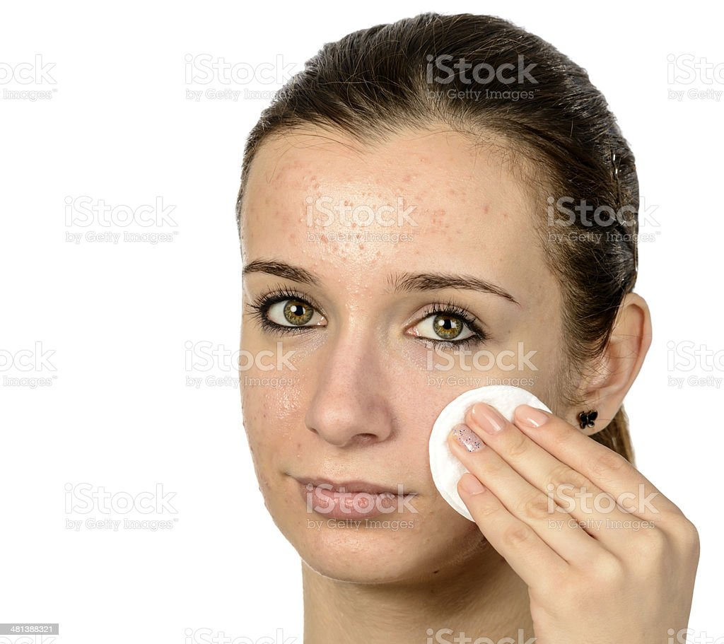 cleaning acne skin stock photo