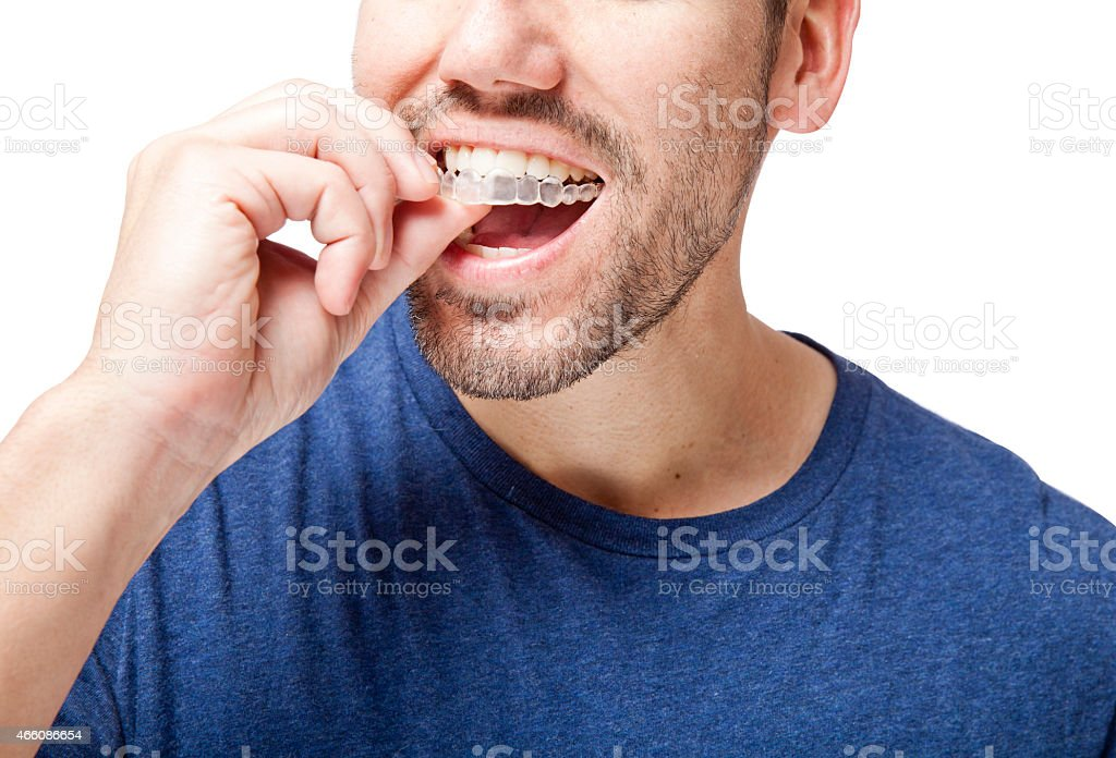 Clear Braces Man stock photo