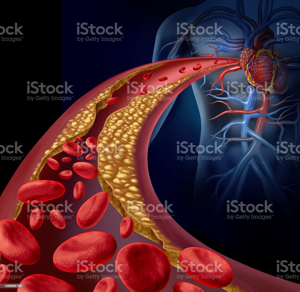 Clogged Artery stock photo