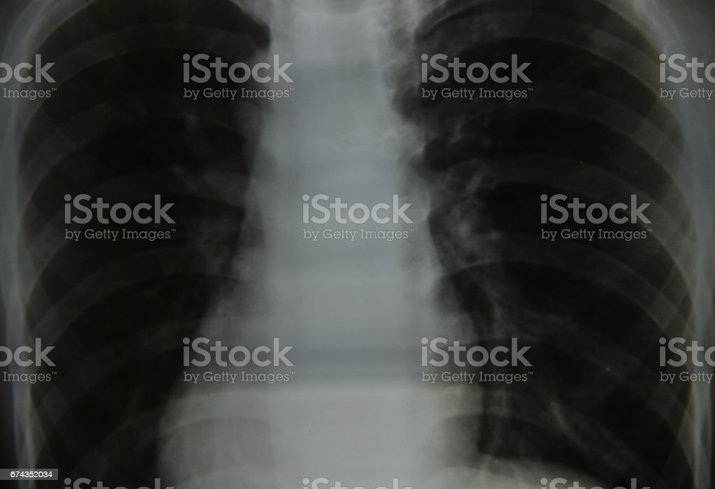 Close up chest x-ray stock photo