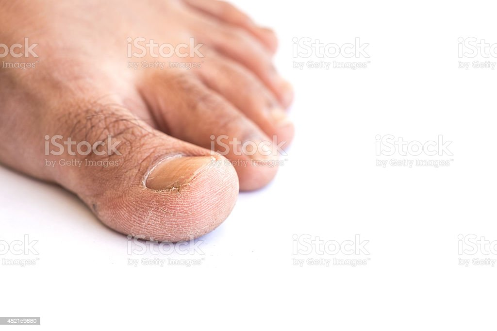 Close up dirty foot on white background stock photo