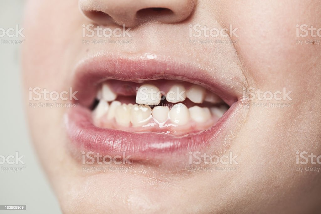 Close up of 7 years old mouth with teeth gap. royalty-free stock photo